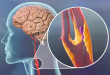 Stroke Symptoms From High Blood Pressure