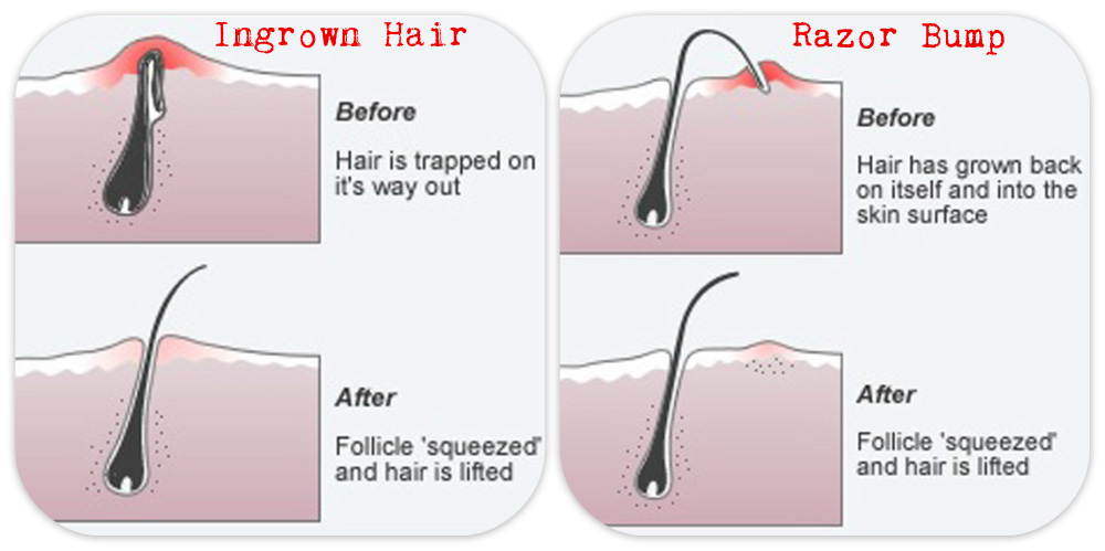 ingrown-hair